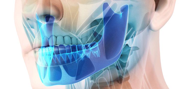 Cirugía Oral Maxilofacial